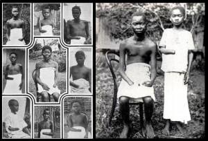 fanciulli vittime di mutilazioni